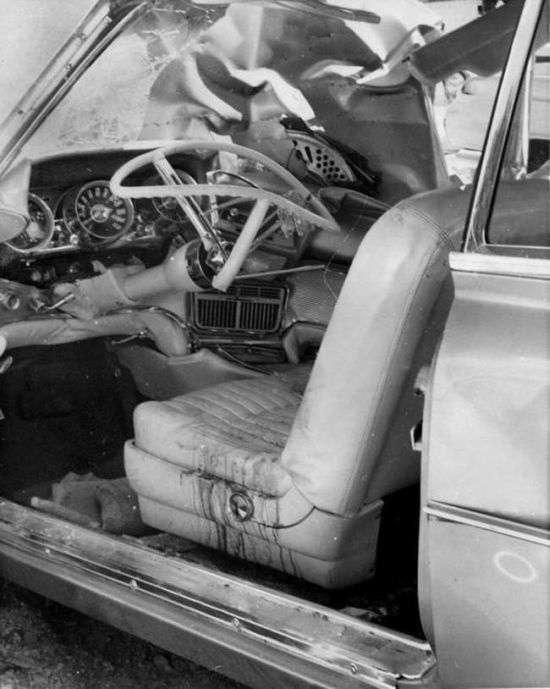 Більше 50 років металевий важіль знаходився в тілі чоловіка (6 фото)