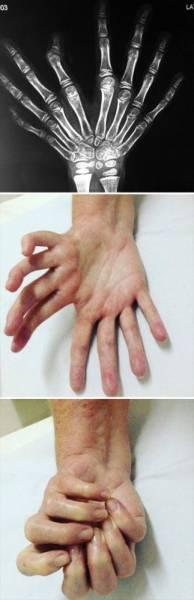Занимательная генетика: 30 человек с редкими аномалиями Интересное