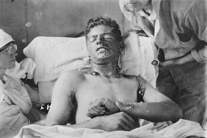 Дыхание смерти: как был изобретён и впервые применён газ иприт   Интересное